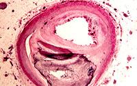 Super niskie ciśnienie i cholesterol nie powstrzymują miażdżycy