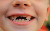 Jak prawidłowo dbać o zęby