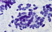 Test krwi może być pomocny w wykrywaniu raka jajnika