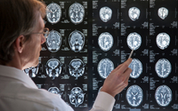 Stymulowanie mózgu prądem bezpieczne?