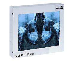 CEFALOM 01 Negatoskop dentystyczny