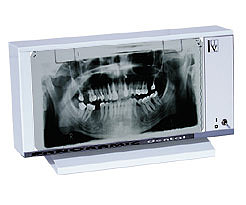 PANORAM-01 Negatoskop dentystyczny